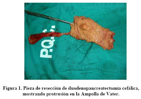 In situ adenocarcinoma of the ampulla of Vater. Presentation of a ...