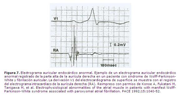 Intrinsic vulnerability of the atrial myocardium as genesis ...